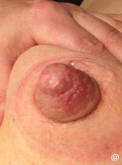 acompanhante 962178448 sex photo app lei do acompanhamento hospitalar onde encontrar produtos neutrogena em lisboa